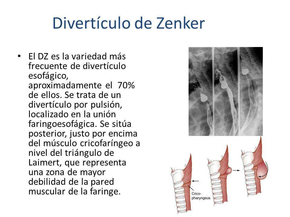 El DZ es la variedad más frecuente de divertículo esofágico, aproximadamente el 70% de ellos. Se trata de un divertículo por pulsión, localizado en la