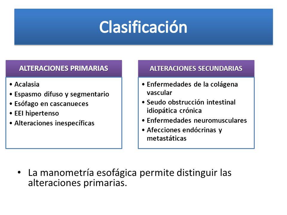 La manometría esofágica permite distinguir las alteraciones primarias. ALTERACIONES PRIMARIAS Acalasia Espasmo difuso y segmentario Esófago en cascanu
