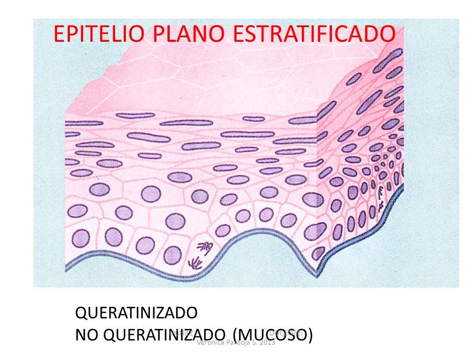 QUERATINIZADO NO QUERATINIZADO (MUCOSO) EPITELIO PLANO ESTRATIFICADO IPCHILE - DOCENTE: Veronica Pantoja S. 2013