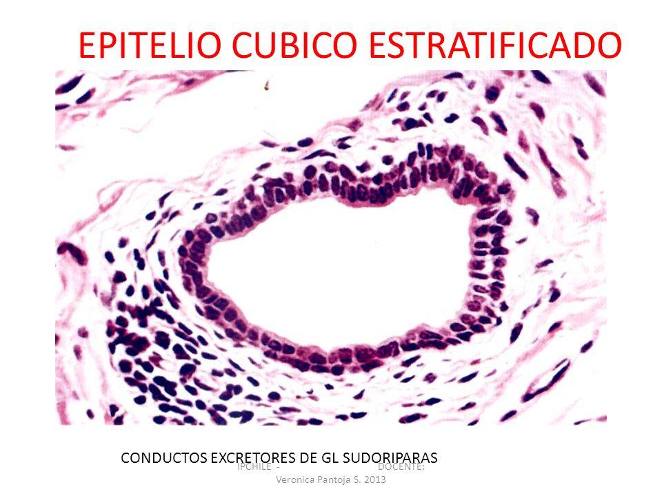 EPITELIO CUBICO ESTRATIFICADO CONDUCTOS EXCRETORES DE GL SUDORIPARAS IPCHILE - DOCENTE: Veronica Pantoja S. 2013