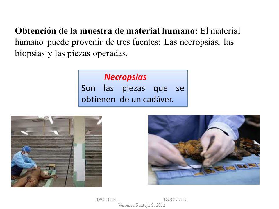 Obtención de la muestra de material humano: El material humano puede provenir de tres fuentes: Las necropsias, las biopsias y las piezas operadas. IPC