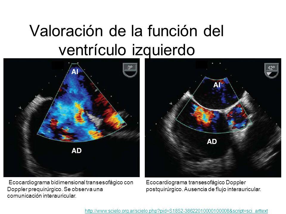 Valoración de la función del ventrículo izquierdo Ecocardiograma bidimensional transesofágico con Doppler prequirúrgico. Se observa una comunicación i