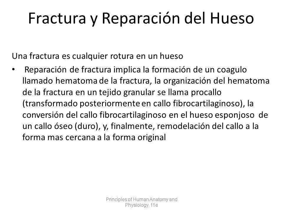 Fractura y Reparación del Hueso Una fractura es cualquier rotura en un hueso Reparación de fractura implica la formación de un coagulo llamado hematoma de la fractura, la organización del hematoma de la fractura en un tejido granular se llama procallo (transformado posteriormente en callo fibrocartilaginoso), la conversión del callo fibrocartilaginoso en el hueso esponjoso de un callo óseo (duro), y, finalmente, remodelación del callo a la forma mas cercana a la forma original Principles of Human Anatomy and Physiology, 11e