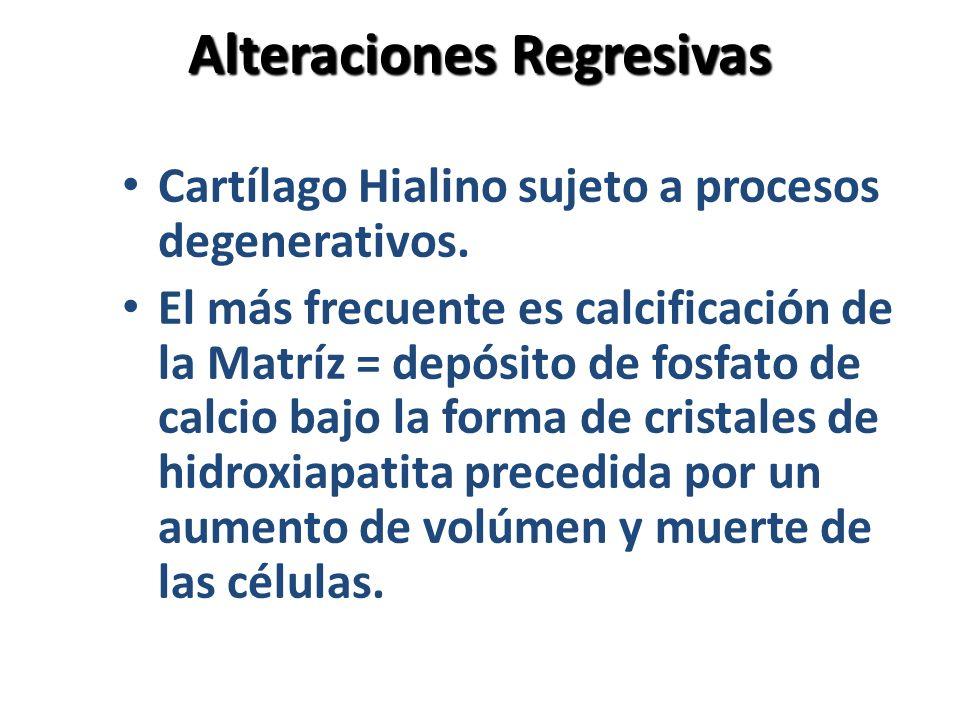 Alteraciones Regresivas Cartílago Hialino sujeto a procesos degenerativos. El más frecuente es calcificación de la Matríz = depósito de fosfato de cal