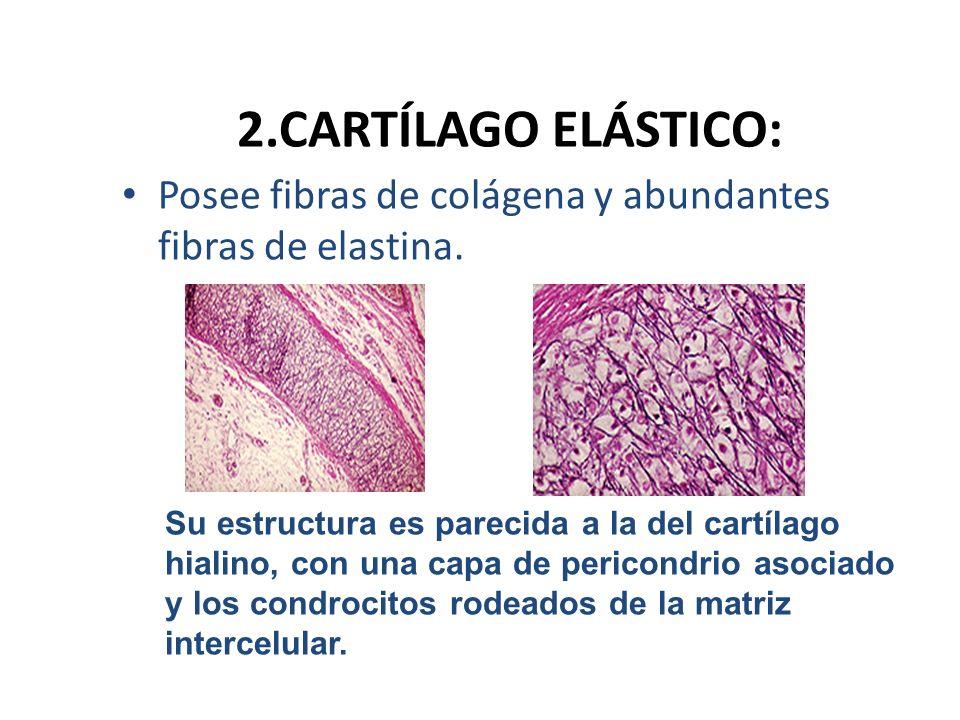 2.CARTÍLAGO ELÁSTICO: Posee fibras de colágena y abundantes fibras de elastina. Su estructura es parecida a la del cartílago hialino, con una capa de