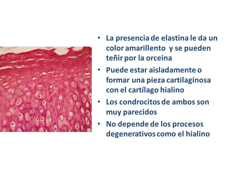 La presencia de elastina le da un color amarillento y se pueden teñir por la orceina Puede estar aisladamente o formar una pieza cartilaginosa con el