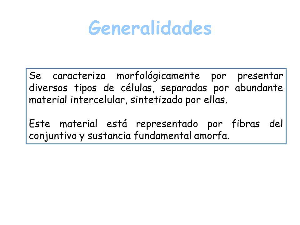 Generalidades Se caracteriza morfológicamente por presentar diversos tipos de células, separadas por abundante material intercelular, sintetizado por