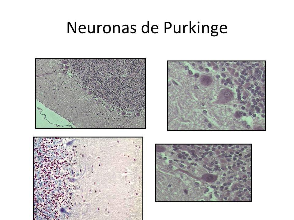 Neuronas de Purkinge