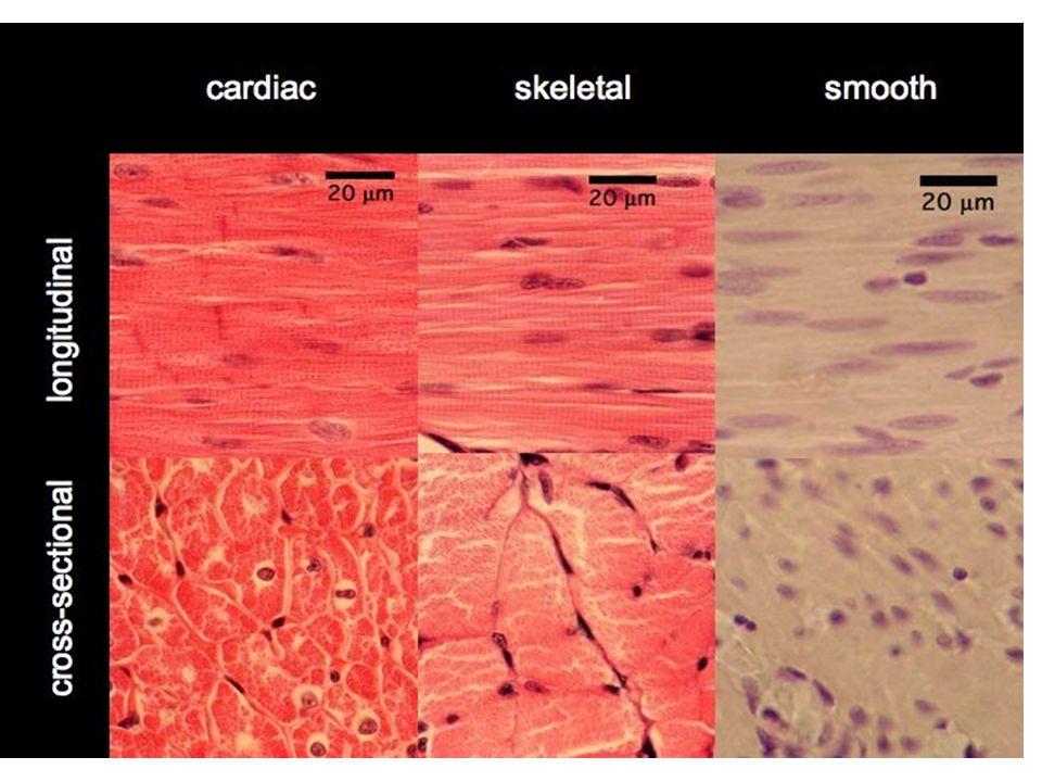 1-Músculo Esquelético Esta formado por fibras musculares, que son mantenidas juntas por el tejido conjuntivo Estas fibras se forman por la fusión de los mioblastos.