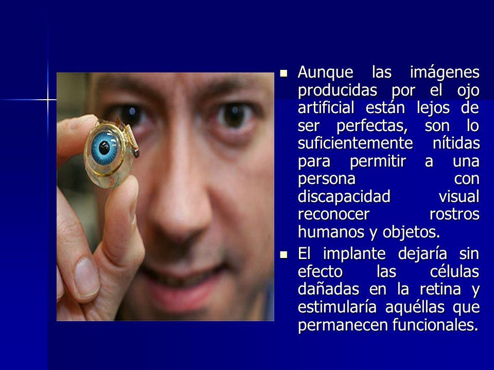 Aunque las imágenes producidas por el ojo artificial están lejos de ser perfectas, son lo suficientemente nítidas para permitir a una persona con disc