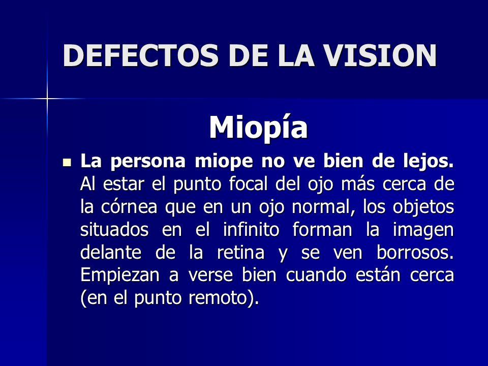 DEFECTOS DE LA VISION Miopía La persona miope no ve bien de lejos. Al estar el punto focal del ojo más cerca de la córnea que en un ojo normal, los ob