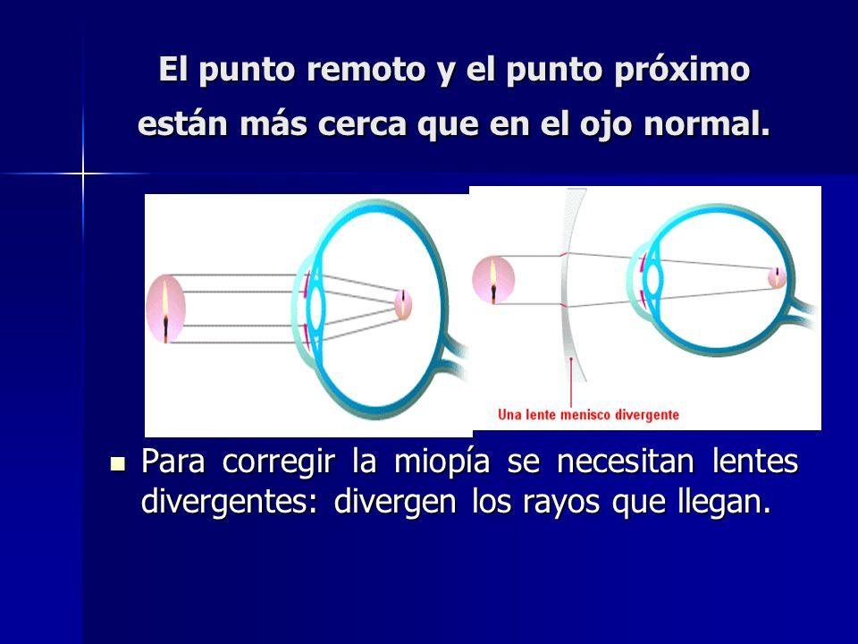 El punto remoto y el punto próximo están más cerca que en el ojo normal. Para corregir la miopía se necesitan lentes divergentes: divergen los rayos q
