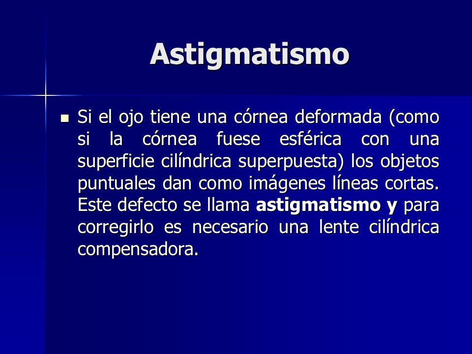 Astigmatismo Si el ojo tiene una córnea deformada (como si la córnea fuese esférica con una superficie cilíndrica superpuesta) los objetos puntuales d