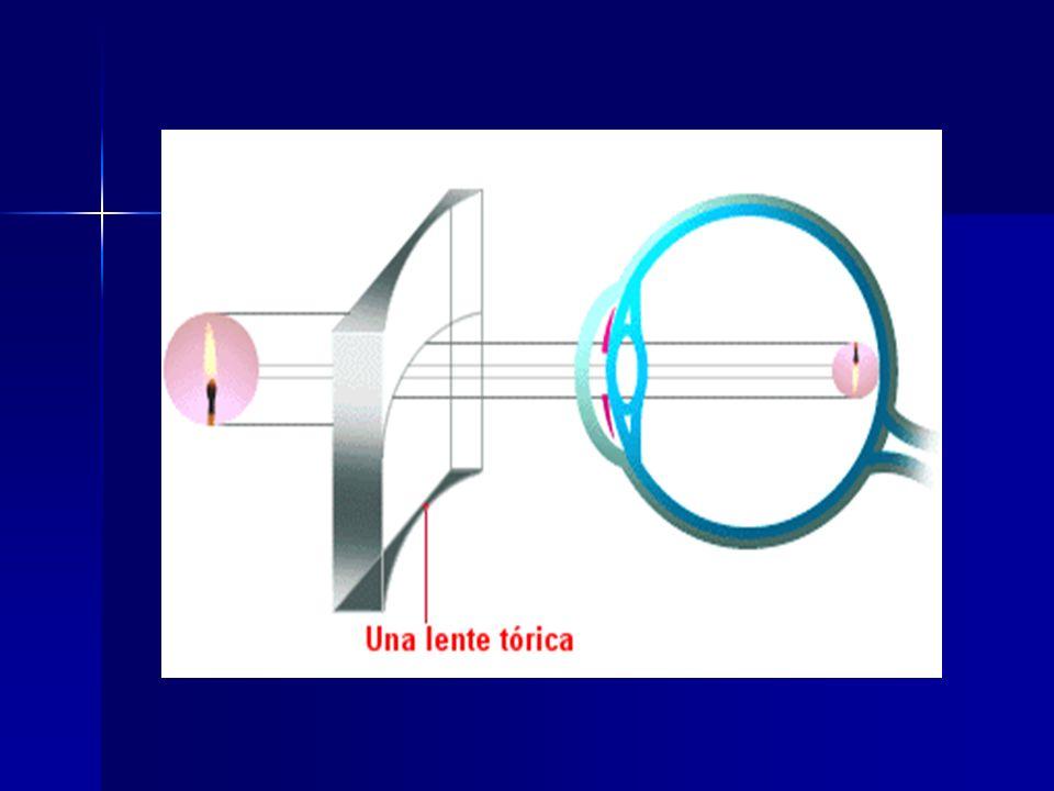 Lentes de contacto Los problemas de las gafas convencionales han conducido al desarrollo de lentes correctoras de plástico que se colocan debajo de los párpados directamente sobre el globo ocular.