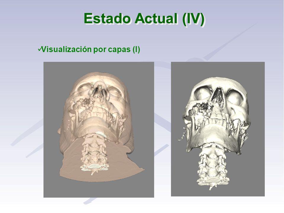 Estado Actual (IV) Visualización por capas (I)