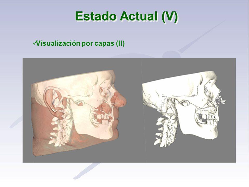 Estado Actual (V) Visualización por capas (II)