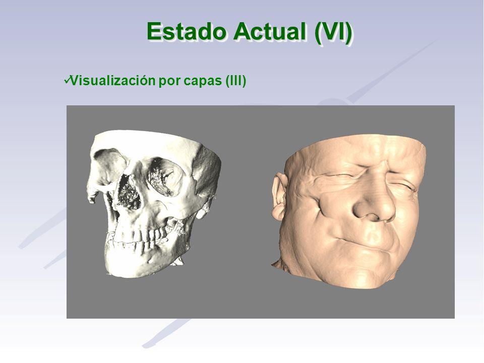 Estado Actual (VI) Visualización por capas (III)