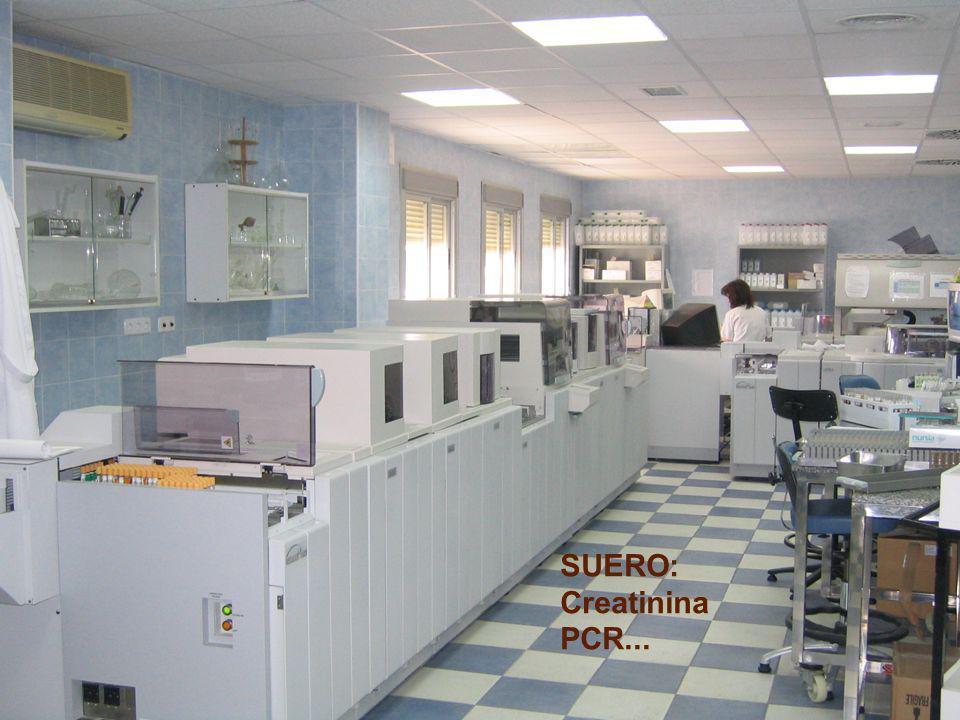 SUERO: Creatinina PCR...