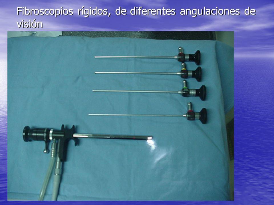 El fibroscopio rígido de óptica de 70º, es el mas utilizado para la exploración de hipofaringe y laringe El fibroscopio rígido de óptica de 70º, es el mas utilizado para la exploración de hipofaringe y laringe El modo de utilización es igual que la del espejillo laringeo El modo de utilización es igual que la del espejillo laringeo Tiene mejor visión que el espejillo laringeo Tiene mejor visión que el espejillo laringeo No precisa anestesia tópica No precisa anestesia tópica