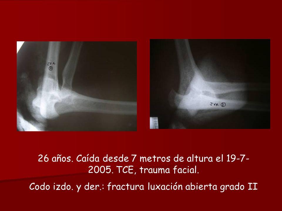 26 años. Caída desde 7 metros de altura el 19-7- 2005. TCE, trauma facial. Codo izdo. y der.: fractura luxación abierta grado II