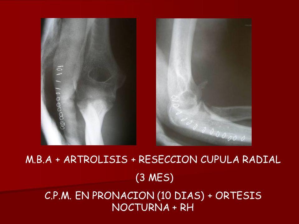 M.B.A + ARTROLISIS + RESECCION CUPULA RADIAL (3 MES) C.P.M. EN PRONACION (10 DIAS) + ORTESIS NOCTURNA + RH