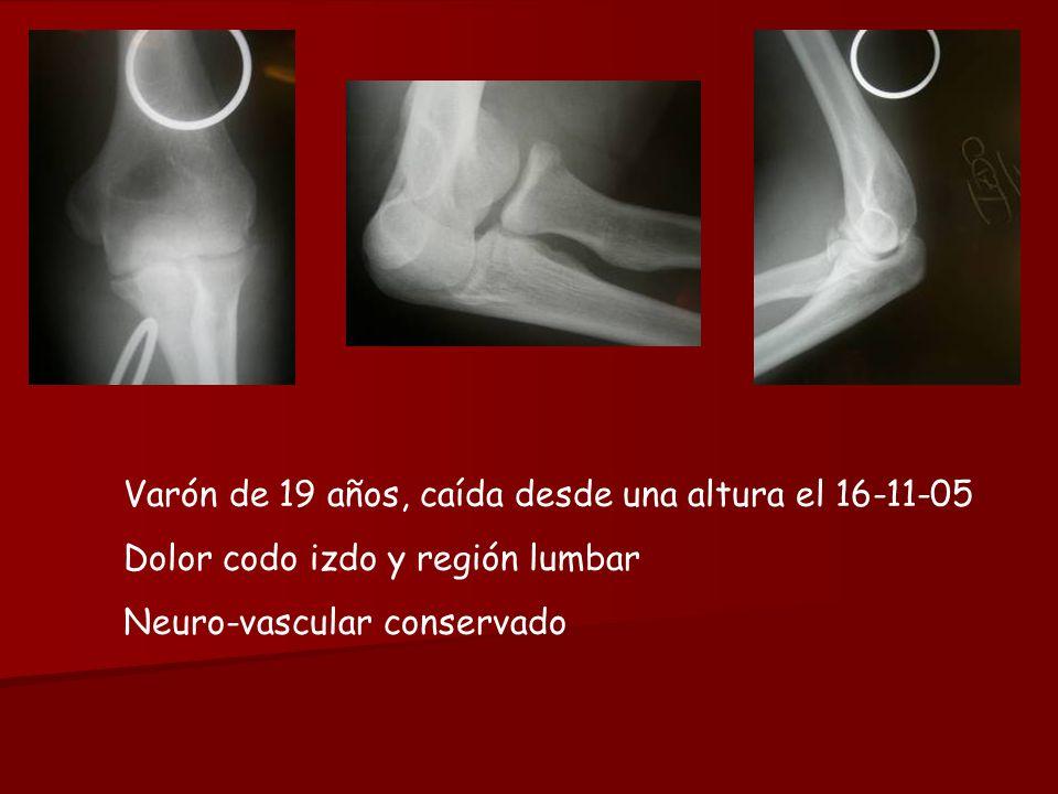 Varón de 19 años, caída desde una altura el 16-11-05 Dolor codo izdo y región lumbar Neuro-vascular conservado