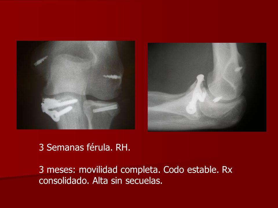 3 Semanas férula. RH. 3 meses: movilidad completa. Codo estable. Rx consolidado. Alta sin secuelas.