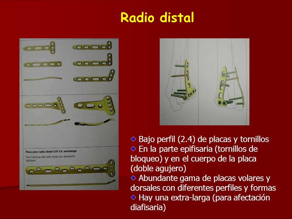 Radio distal Bajo perfil (2.4) de placas y tornillos En la parte epifisaria (tornillos de bloqueo) y en el cuerpo de la placa (doble agujero) Abundant