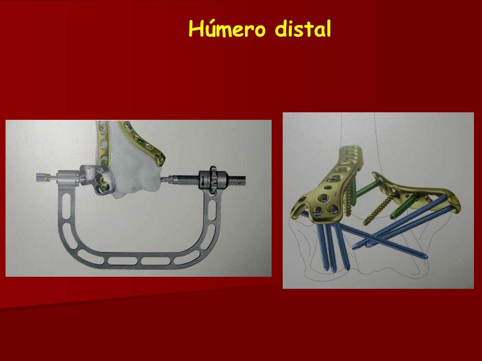 Húmero distal