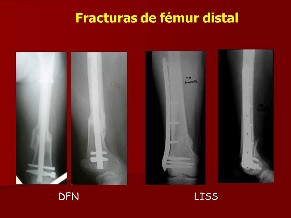 Fracturas de fémur distal DFNLISS