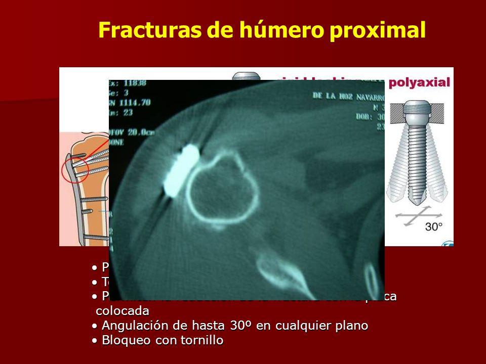 Placa anatómica Placa anatómica Tornillos de estabilización angular poliaxiales Tornillos de estabilización angular poliaxiales Permiten la reducción