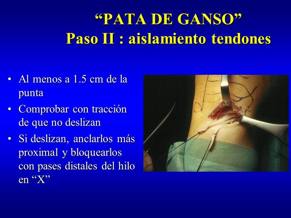 PATA DE GANSO Paso II