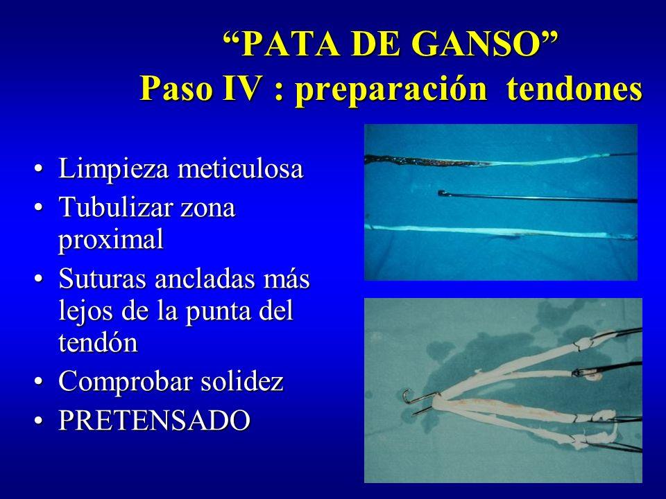PATA DE GANSO Paso IV : pretensado 15-20 L 20 min.