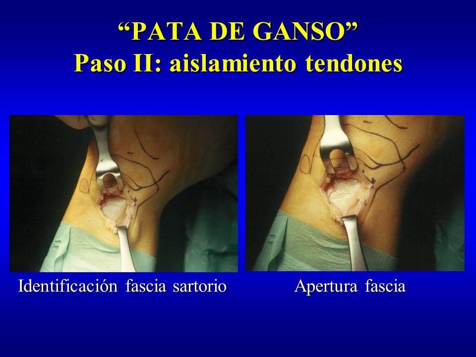 PATA DE GANSO Paso II: aislamiento tendones Identificación:Identificación: –Situación –Tamaño –Dirección –Expansiones fibrosas