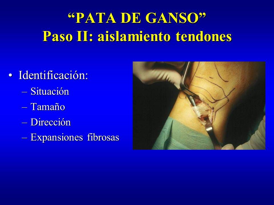 PATA DE GANSO Paso II: aislamiento tendones Aislamiento deAislamiento de tendones ST y RI tendones ST y RI Sección expansionesSección expansiones fibrosas fibrosas