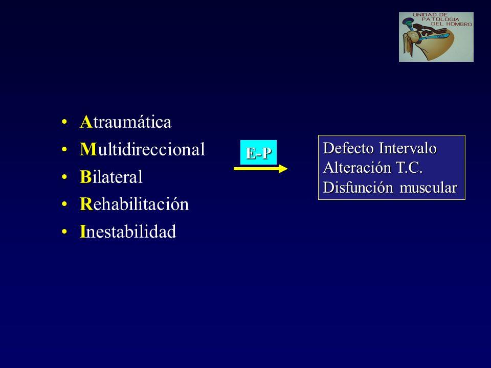AAtraumática MMultidireccional BBilateral RRehabilitación IInestabilidad Defecto Intervalo Alteración T.C. Disfunción muscular E-P