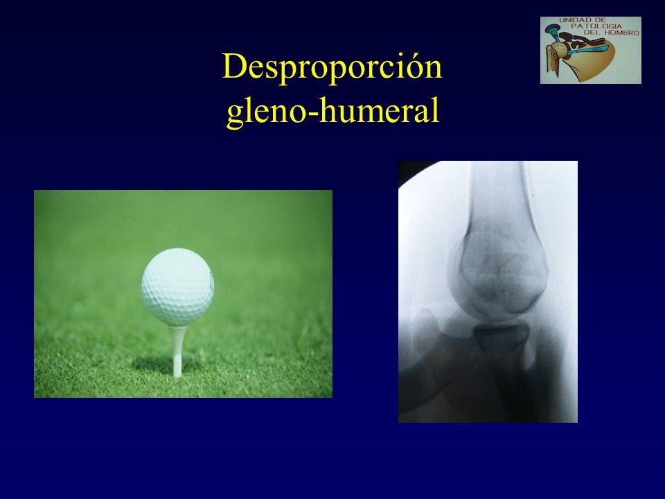 PINZAMIENTO INTERNO (Postero-superior) Es el contacto del troquíter (SE, IE) con la parte P-S del reborde glenoideo, al hacer elevación y rotación externa Es un movimiento anatómico, pero en los lanzadores puede hacerse patológico (repetición).