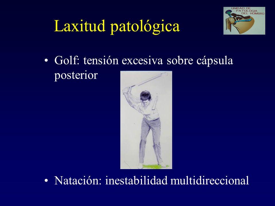 Laxitud patológica Golf: tensión excesiva sobre cápsula posterior Natación: inestabilidad multidireccional