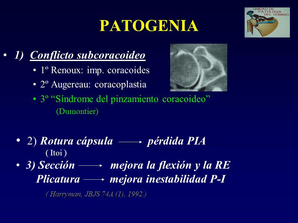 PATOGENIA 1) Conflicto subcoracoideo 1º Renoux: imp. coracoides 2º Augereau: coracoplastia 3º Síndrome del pinzamiento coracoideo (Dumontier) 2) Rotur