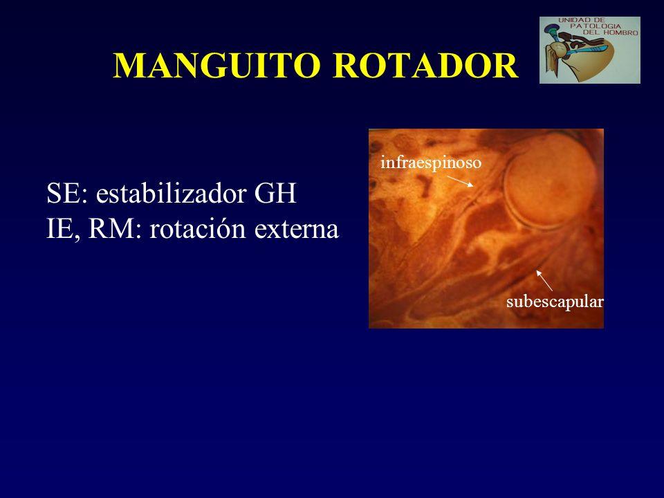 MANGUITO ROTADOR SE: estabilizador GH IE, RM: rotación externa subescapular infraespinoso