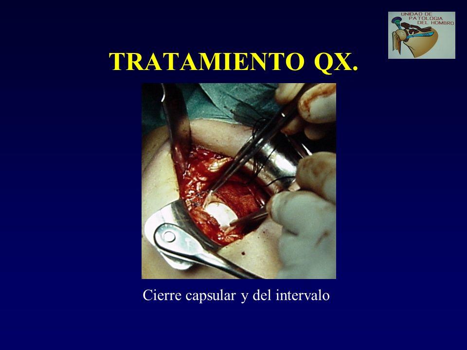 TRATAMIENTO QX. Cierre capsular y del intervalo