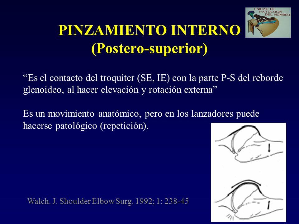 PINZAMIENTO INTERNO (Postero-superior) Es el contacto del troquíter (SE, IE) con la parte P-S del reborde glenoideo, al hacer elevación y rotación ext