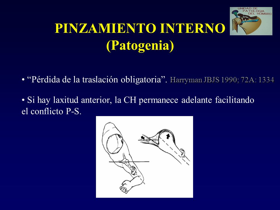 PINZAMIENTO INTERNO (Patogenia) Harryman JBJS 1990; 72A: 1334 Pérdida de la traslación obligatoria. Harryman JBJS 1990; 72A: 1334 Si hay laxitud anter