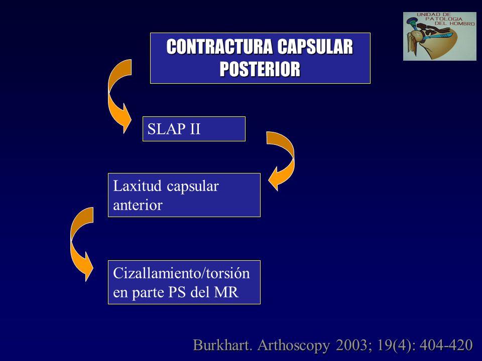 SLAP II CONTRACTURA CAPSULAR POSTERIOR Laxitud capsular anterior Cizallamiento/torsión en parte PS del MR Burkhart. Arthoscopy 2003; 19(4): 404-420