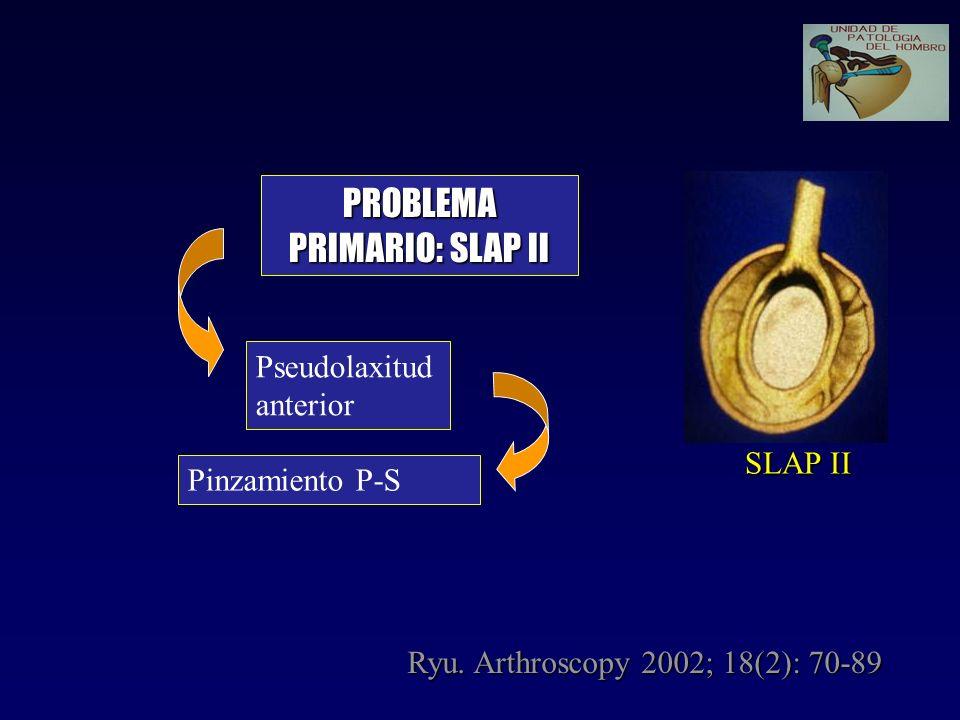 Pseudolaxitud anterior PROBLEMA PRIMARIO: SLAP II Pinzamiento P-S SLAP II Ryu. Arthroscopy 2002; 18(2): 70-89