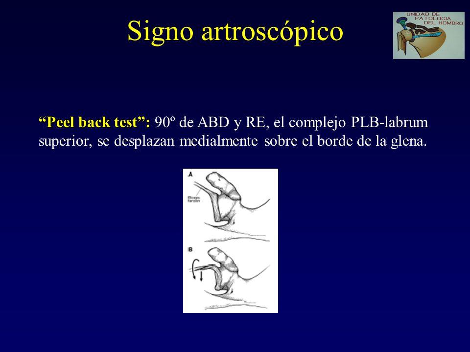 Signo artroscópico Peel back test: Peel back test: 90º de ABD y RE, el complejo PLB-labrum superior, se desplazan medialmente sobre el borde de la glena.