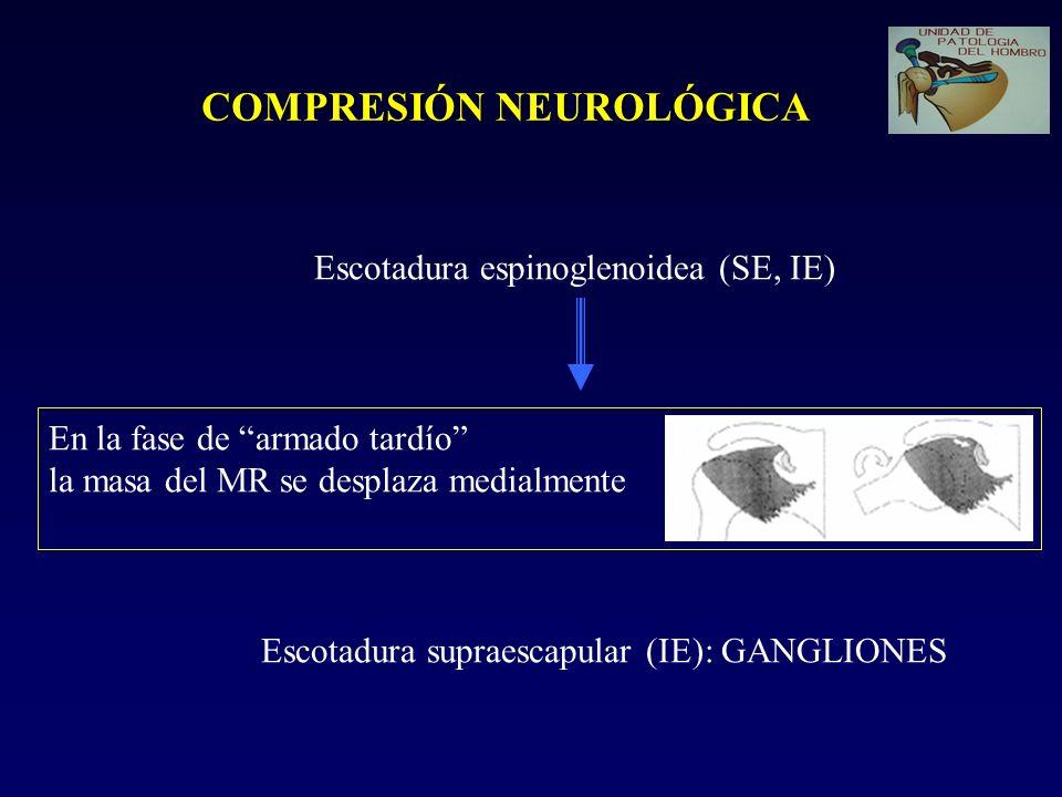 COMPRESIÓN NEUROLÓGICA Escotadura espinoglenoidea (SE, IE) En la fase de armado tardío la masa del MR se desplaza medialmente Escotadura supraescapula