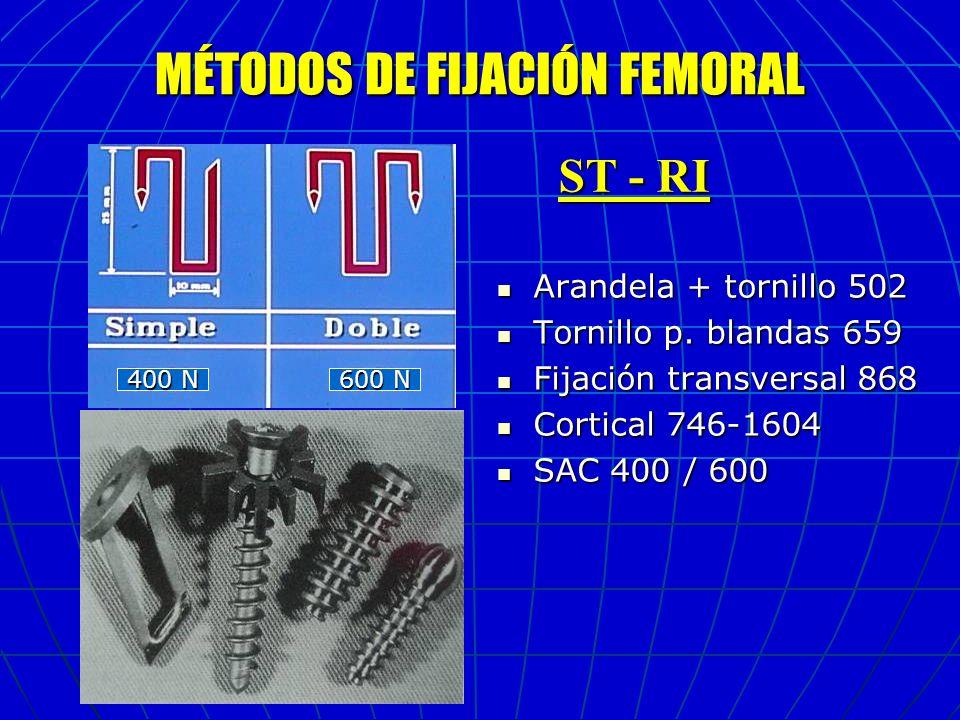 MÉTODOS DE FIJACIÓN TIBIAL Arandela + tornillo 724 Arandela + tornillo 724 Tornillo p.