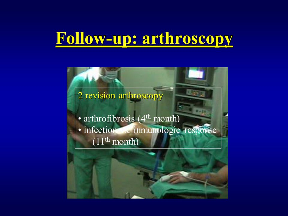 Follow-up: arthroscopy 2 revision arthroscopy arthrofibrosis (4 th month) infection vs. inmunologic response (11 th month)