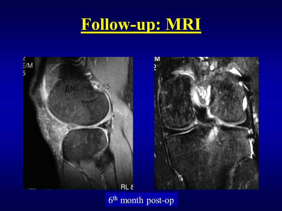 Follow-up: MRI 6 th month post-op